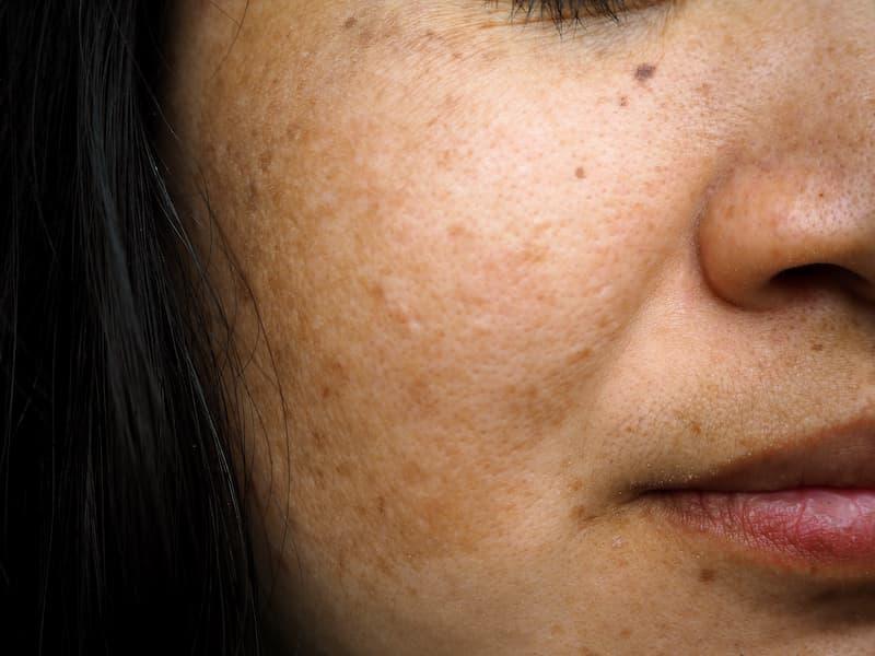 melasma on womans cheek