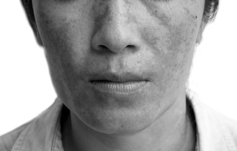melasma on womans cheeks