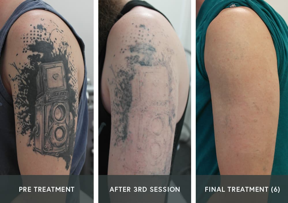picosure tattoo removal progress picture