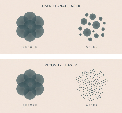 traditional laser vs picosure laser diagram