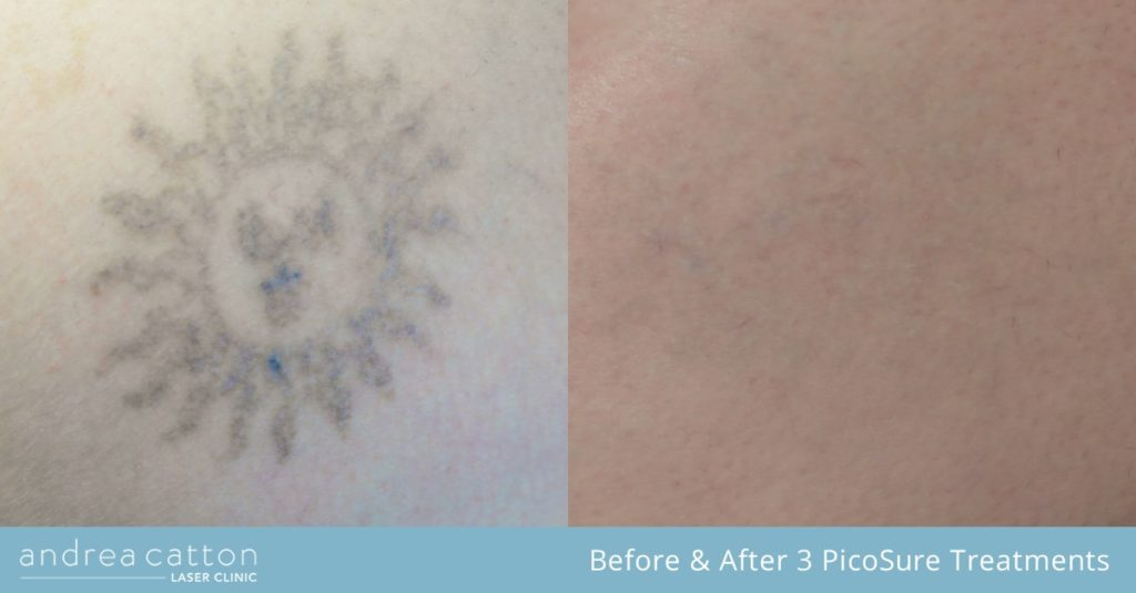 lisa before and after 3 picosure treatments