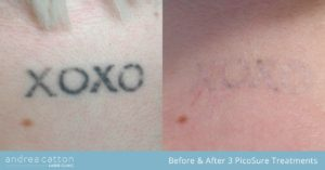 behind the neck tattoo before and after 3 picosure removal treatments