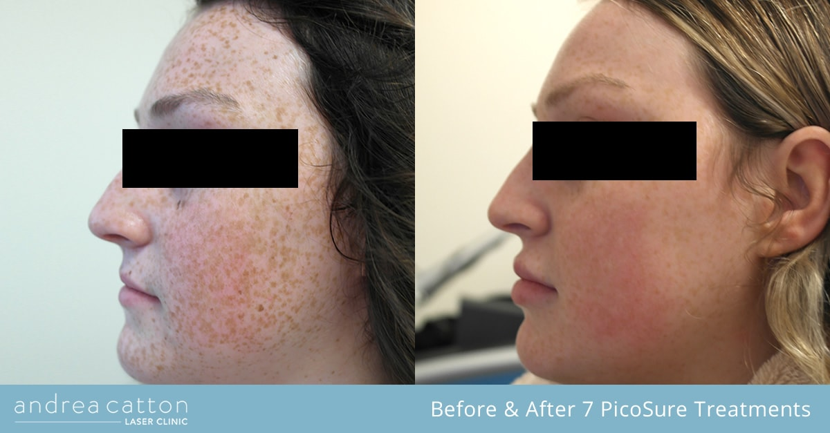 face freckle reduction before and after 7 treatments