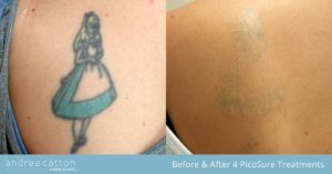 shoulder blade tattoo before and after 4 picosure removal treatments
