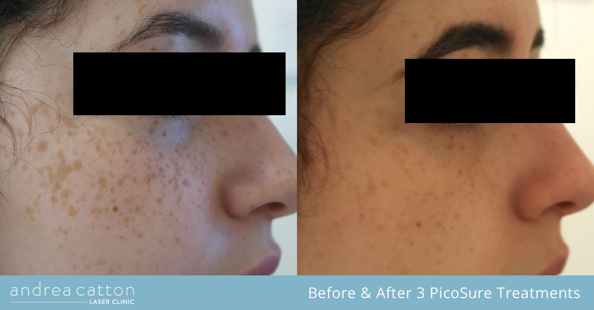 freckle reduction before and after 3 treatments