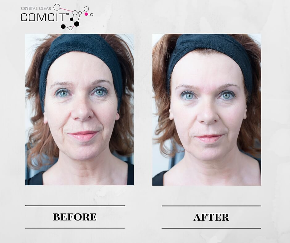 before and after comcit elite treatment