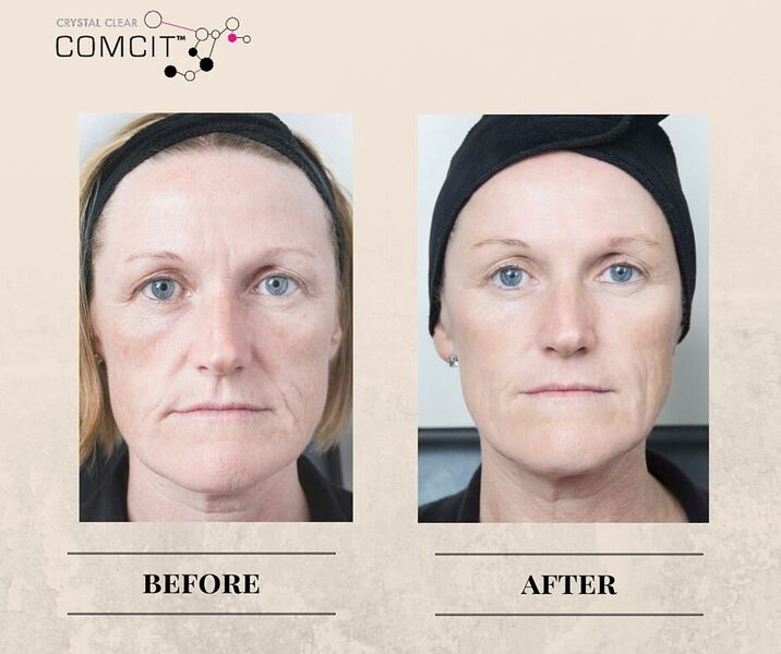 before and after crystal clear comcit elite treatment