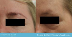 eyebrow tattoo picosure before and after
