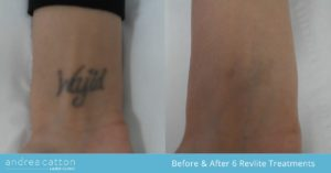 wrist tattoo picosure before and after