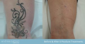 wrist tattoo before and after 6 picosure tattoo removal treatments